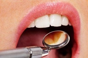 Denver and Lone Tree Dentist Services