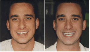 Denver CO dentist shows pictures of Dental Veneers Before and After