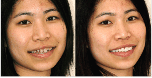 Lone Tree CO dentist shows pictures of Dental Veneers Before and After