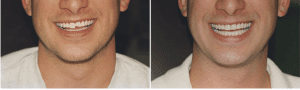 Denver dentist shows pictures of Dental Veneers Before and After