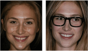 Denver dentist shows Dental Veneers Before and After picture
