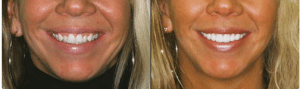 Lone Tree CO dentist shows Dental Veneers Before and After photos