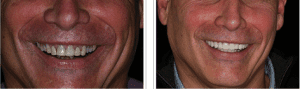 Denver dentist shows Dental Veneers Before and After pictures