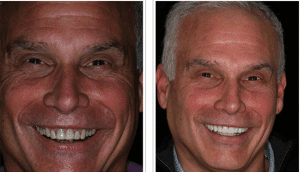 Lone Tree CO dentist shows Dental Veneers Before and After