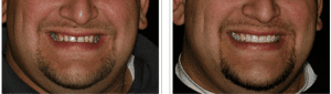 Lone Tree dentist shows Dental Veneers Before and After pictures