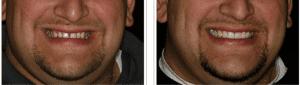 Dental Veneers Example 4