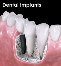 Dental Implants by dentist in Denver and Lone Tree