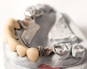 Dental Bridge by dentist in Denver