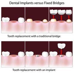 Types of Dental Implants Diagram by Denver dentist