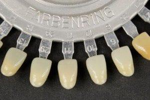Dental Veneers by dentist in Denver and Lone Tree