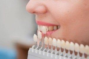 Denver dentist shows Dental Veneers Color Matching