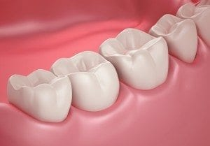 Denver CO dentist explains Healthy Teeth and Gums