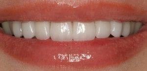 Denver dentist shows Dental Veneers After Photo
