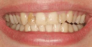 Denver dentist shows Dental Veneers Before Photo
