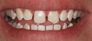 Denver dentist shows Dental Veneers Before Photo