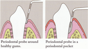 Periodontal Probe Diagram by Denver CO dentist