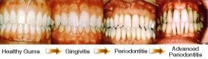 Progression-of-gum-disease