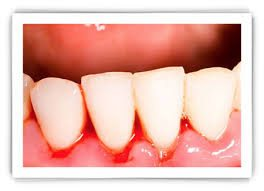 bleeding gums lower