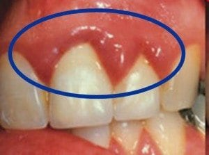 Lone Tree, CO dentist explains what inflamed gums can mean.