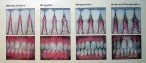 Denver, CO dentist explains periodontal disease
