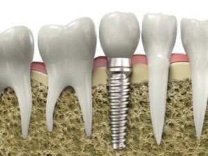 dental implant Denver Dentist