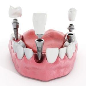 dental implants single