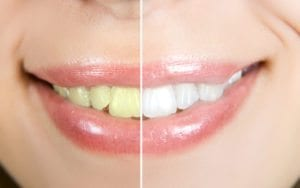 Cosmetic Dentistry Denver CO