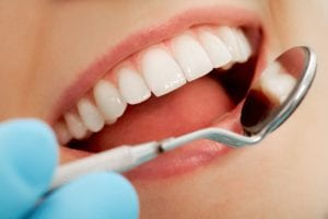 up close photo of open mouth with dentist holding mouth mirror