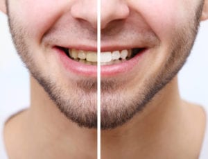 teeth whitening before and after image of male patient