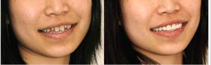 Denver Dentist Veneers Before and After Image