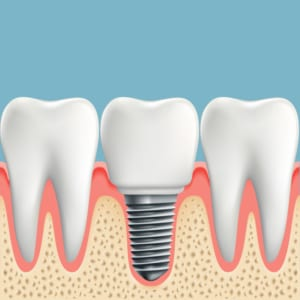 digital illustration of dental implant placed between two molars