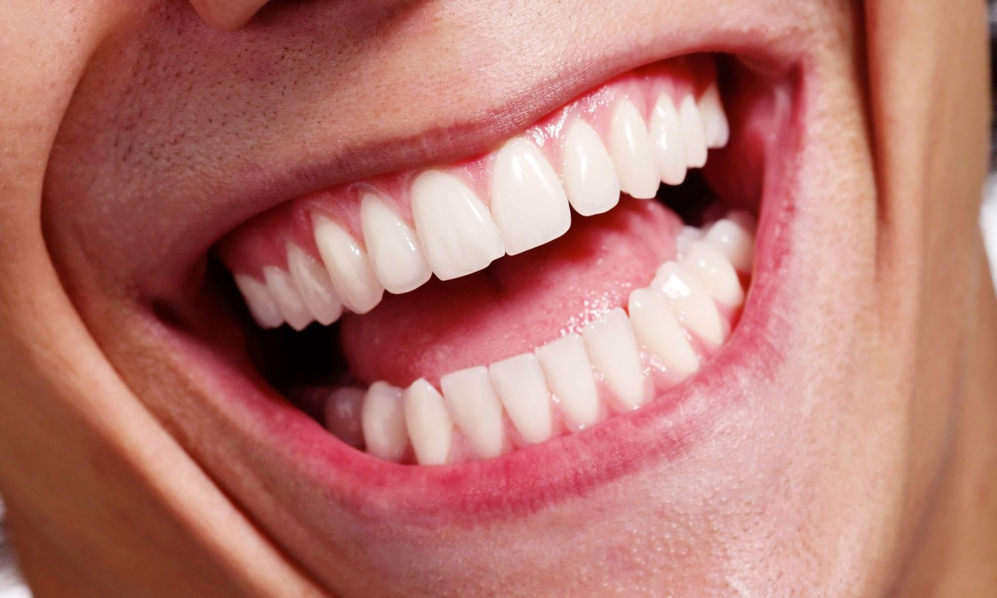 Denver Dentist Bone Graft Slider Background