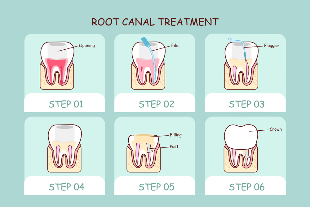 illustration of tooth root canal treatment