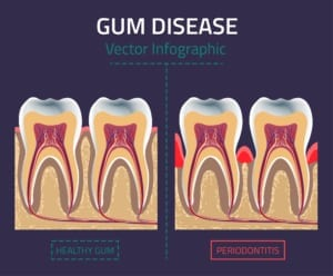 digital illustration depicting gum disease