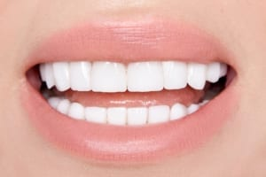 up close photo of woman with beautiful porcelain veneers